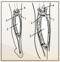 Incisione per ingrandimento del polpaccio e posizione della protesi