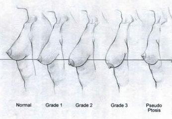 Rappresentazione della classificazione della ptosi mammaria (discesa del seno)